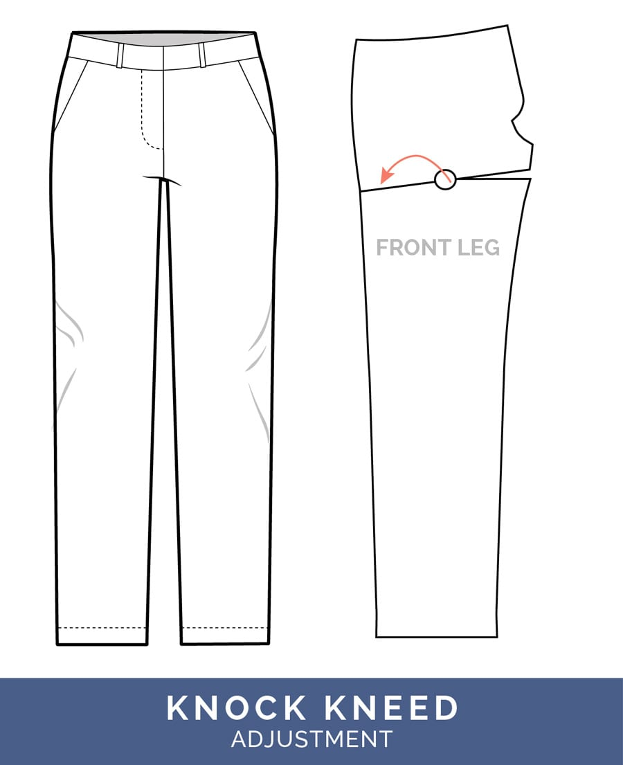Knock Kneed Adjustment // Pants Fitting Adjustments // Closet Case Patterns
